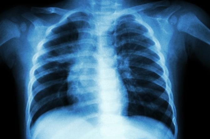 Detectaron un caso de tuberculosis en centro escolar de Florida